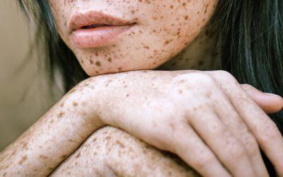 How to Treat Eczema naturally