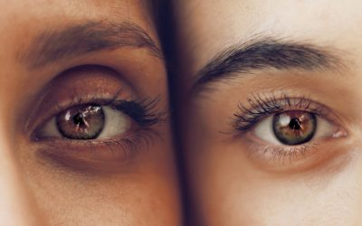How To Reduce Dark Circles Under Your Eyes Naturally